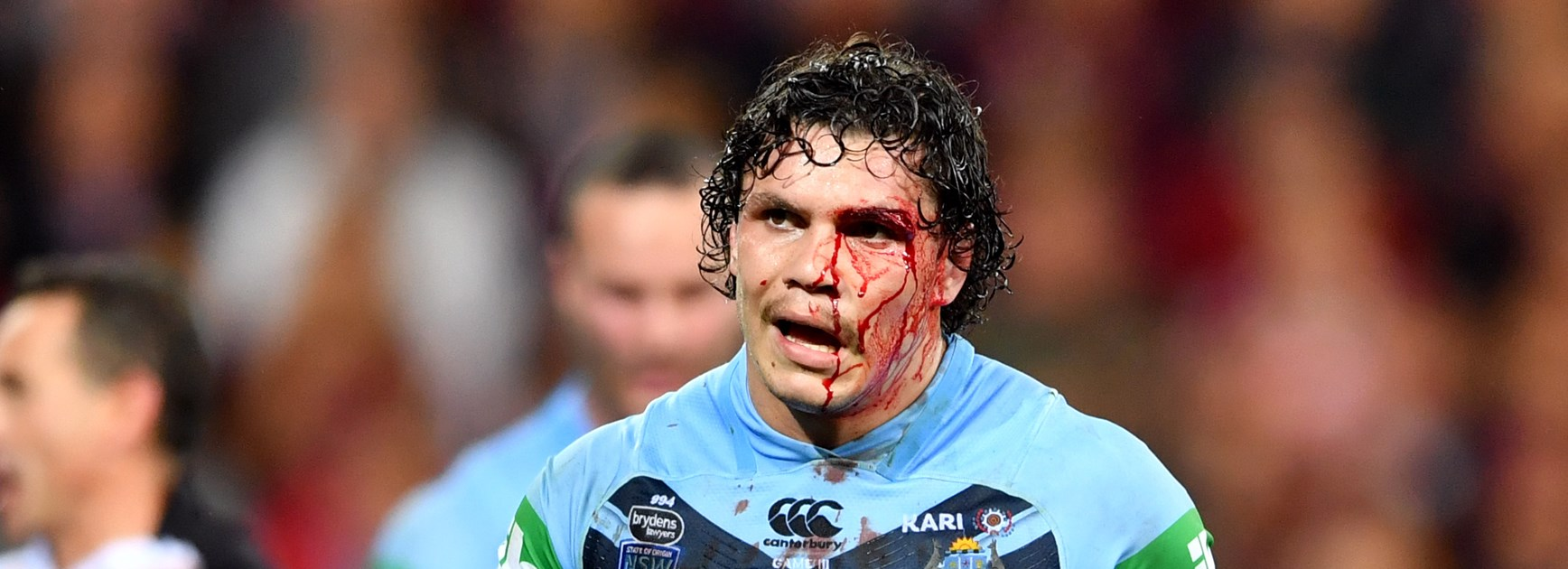 James Roberts copped a cut to the face in Origin III.