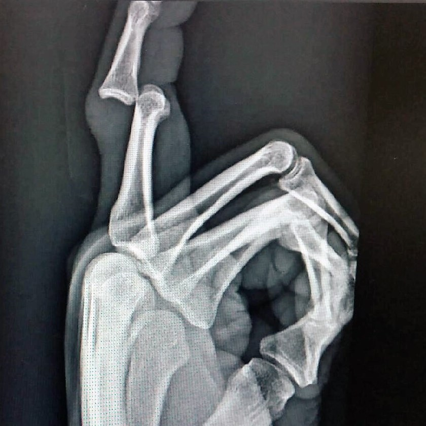X-ray of Trent Merrin's injured right finger
