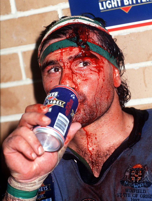 Benny Elias wears the scars of battle after Game One.