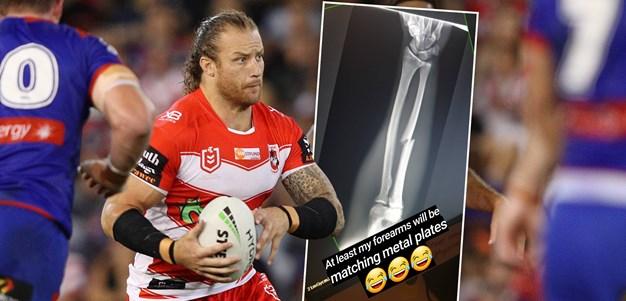Korbin Sims confirms broken arm